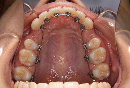 理由③ 治療中の見た目が気にならない、白い装置や裏側の装置を選択可能。